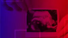 Curso de Ultrassonografia em Medicina Fetal 1° e 2° Trimestres e Doppler – Prof. Dr Sang C. Cha